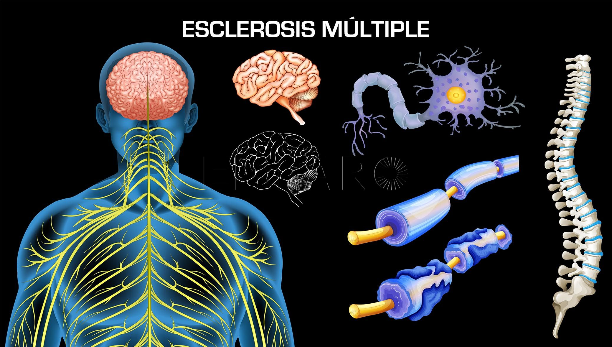 esclerosis multiple1